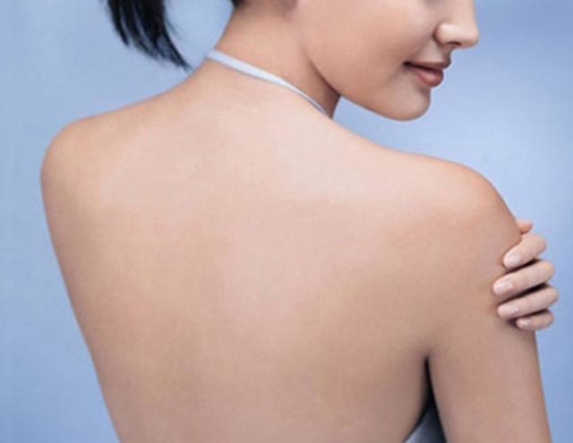 Tips trị sạch những nốt mụn đáng ghét ở lưng