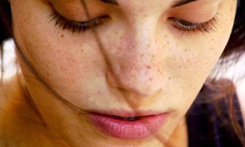 Làm sao để lấy lại tự tin với làn da nám và tàn nhang?