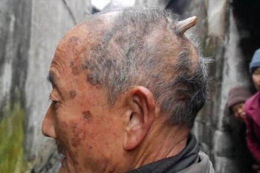 """Ông Huang Yuanfan, 84 tuổi, sống tại Ziyuan, miền nam Trung Quốc đã mọc một chiếc sừng phía sau đỉnh đầu. Tuy không lớn bằng chiếc sừng của cụ Liang nhưng nó dài đến 3 inch (khoảng hơn 7,5cm) và không ngừng phát triển thêm. """"Các bác sĩ không biết tôi bị bệnh gì. Tôi phải che nó đi bằng mũ nhưng có lẽ sẽ khó làm điều đó trong tương lai"""", ông nói. (Ảnh: Oddee)"""