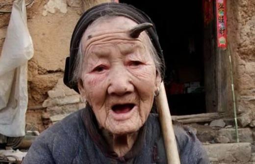 Cụ bà trăm tuổi Zhang Ruifang, sống tại Linlou Village thuộc tỉnh Hà Nam của Trung Quốc cũng là trường hợp mọc sừng kì lạ. Năm nay 101 tuổi, cụ Zhang cho biết chiếc sừng hình thành và phát triển từ năm 2009. Ban đầu, nó chỉ là một mảng da nhỏ phía trái trán nhưng dần dần, nó dài ra thành chiếc sừng. Hiện tại, một mảng da tương tự cũng đang hình thành phía trán phải của cụ. (Ảnh: Oddee)