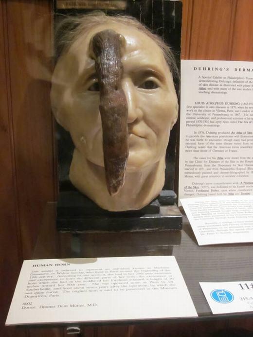 Quay trở về những năm đầu thế kỉ 19, đã có một phụ nữ tên là Dimanche, hay còn gọi là Widow Sunday, người Pháp sở hữu chiếc sừng dài lên tới 24,9 cm ở giữa trán. Hiện mô hình sáp về chiếc đầu mọc sừng của cô đang được trưng bày tại Bảo tàng Mutter tại The College of Physicians của Philadelphia. (Ảnh: Oddee)