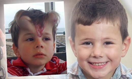 Cậu bé George Ashman, 5 tuổi này đã bị một vết bớt lớn ở giữa khuôn mặt. Các bác sĩ đã phẫu thuật loại bỏ nó bằng cách tăng thể mô dưới da cho cậu. Kết quả là hai bên trán nổi lên các u giống chiếc sừng. Tất nhiên là nó sẽ xẹp xuống vài tháng sau đó. (Ảnh: Oddee)