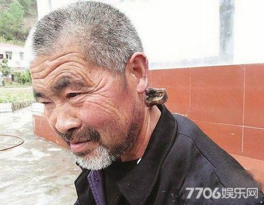 """Hơn 30 năm qua, cụ ông 62 tuổi Li Zhibing từ Thập Yển, tỉnh Hồ Bắc, Trung Quốc rất khổ sở với chiếc sừng mọc ra từ cổ. Do mọc ở phần gáy, cuộc sống của cụ Li bị đảo lộn, đặc biệt là trong khi ngủ. """"Nó đã dài tới 15cm và không ngừng tăng. Tôi đã chạy chữa khắp nơi, trong đó sử dụng thảo dược nhưng có vẻ nó chỉ làm chiếc sừng mọc nhanh hơn mà thôi"""", cụ Li nói. (Ảnh: Oddee)"""