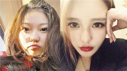 Châu Dương Thanh trước và sau khi phẫu thuật thẩm mĩ