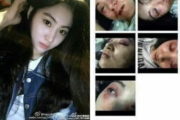Nữ ca sĩ Tiểu Hy bị đánh đập đến biến dạng mặt chỉ vì cãi lời ông chủ. Sự việc xảy ra vào giữa năm 2015.