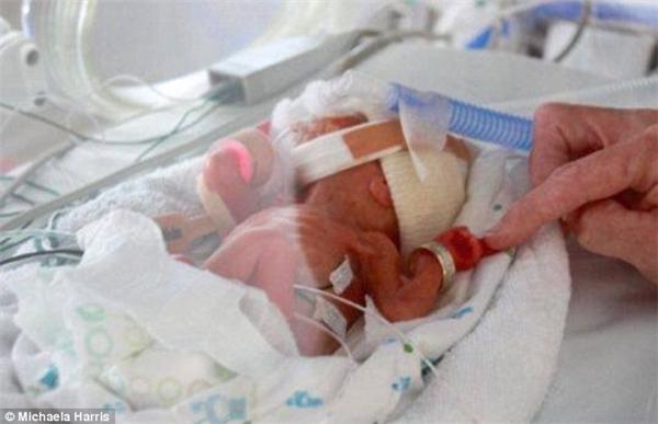 Bé Grace là con của Michaela Harris, sinh non ở tuần thứ24 và chỉ nặng 490gam.(Ảnh: Daily Mail)
