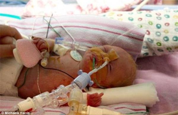 """""""Tôi từng hỏi các nữ hộ sinh rằng con tôi có bao nhiêu phần trăm sống sót, và con số họ đưa ra rất đáng buồn""""… – Harris kể lại.(Ảnh: Daily Mail)"""