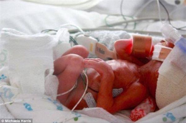 Sinh non, bị bệnh tim, nhiễm trùng… tất cả đều không thể đánh bại cô bé kiên cường. Grace được về nhà sau 123 ngày nằm viện.(Ảnh: Daily Mail)