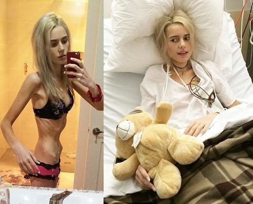 """Elle với thân hình """"da bọc xương"""" sau khi nhịn ăn uống để giảm cân. Ảnh: Dailymail."""