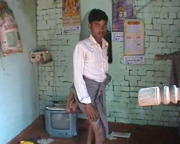 Chàng trai 20 tuổi có 4 chân ở Ấn Độ. Ảnh: Internet