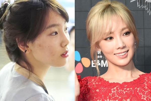 Taeyeon cũng là một cô nàng rất dễ bị mụn. Làn da lấm tấm mụn với những vết thâm khiến nhan sắc của cô nàng giảm sút khá nhiều nhất là khi để mặt mộc (ảnh trái). Tuy nhiên làn da của Taeyeon không nhiều mụn như Seohyun nên cô nàng chỉ cần lớp kem nền nhẹ là có thể che đi được.
