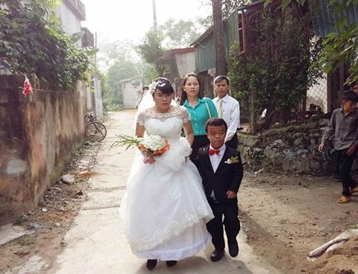 """Đám cưới cổ tích của """"chàng lùn và cô gái mù"""". (Ảnh: Internet)"""