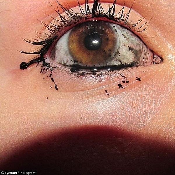 Đôi mắt long lanh vì vẩy mực vào tròng.