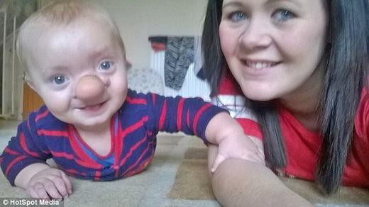 Bé Ollie với nụ cười luôn trên môi cùngmẹ. (Ảnh: HotSpot Media)