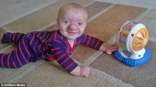 Ollie vẫn luôn tươi cười và chơi đùa như bao đứa trẻ đó. (Ảnh: HotSpot Media)