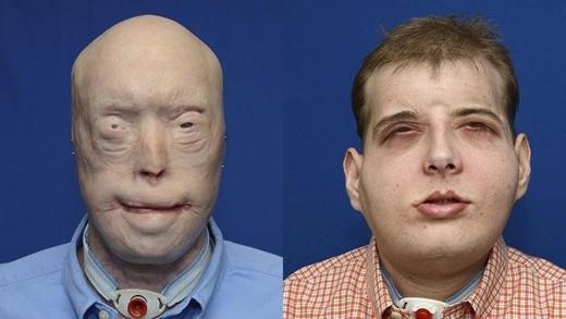 Người lính cứu hỏa Patrick Hardison, 41 tuổi, bị bỏng nặng trong một vụ hỏa hoạn vào năm 2001. Anh bị mất da đầu, hai tai, mi mắt, mũi và môi. Năm nay, các bác sĩ tại New York đã thực hiện cuộc cấy ghép mặt phức tạp nhất từ trước đến nay, phục hồi phần nào khuôn mặt của Patrick. (Ảnh: Medical Daily)