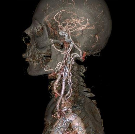 Công nghệ chụp ảnh CT độ phân giải cao cho phép các bác sĩ có được những tấm ảnh thực tế nhất về bên trong cơ thể người. Thông thường phương pháp chụp ảnh CT sử dụng một loạtcác hình ảnh X quang chụp từ nhiều góc độ khác nhau để cung cấp hình ảnh chi tiết về bên trong cơ thể. Tuy nhiên, phương pháp mới này ít phát ra phóng xạ hơn, giảm nguy cơ ảnh hưởng đến sức khỏe bệnh nhân. Hiện tại, các bác sĩ đã có thể theo dõi chức năng của các nội tạng. Ngoài ra, các nhà khoa học cũng phát minh ra công nghệ sóng siêu âm mới, dựa vào các làn sóng ở tần số cao để tạo ra những mô phỏng chuyển động bên trong cơ thể bệnh nhân. (Ảnh: Medical Daily)
