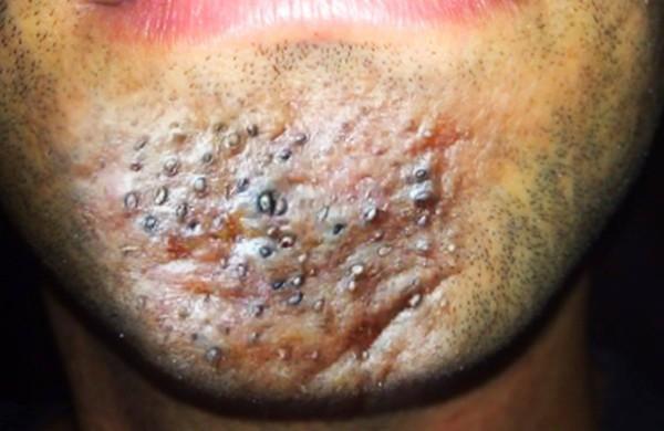Mụn đinh râu rất nguy hiểm nên mọi người cần cẩn thận với loại mụn này. Ảnh: Internet