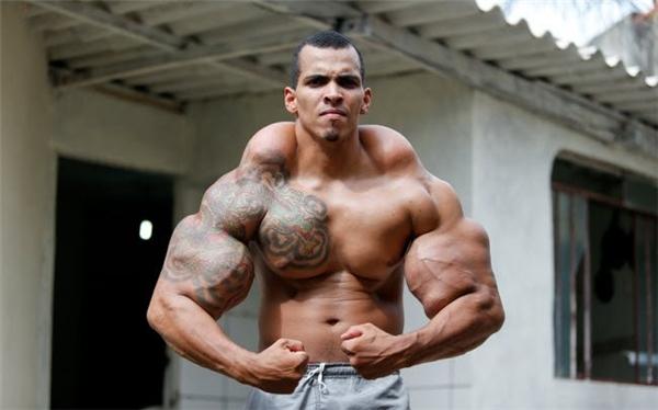 Vận động viên thể hình Romario Dos Santos Alves đã mạo hiểm bơm dầu ăn và rượu để tạo ra cơ bắp như người khổng lồ.