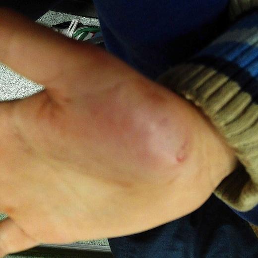 Những vết rách và thâm tím trong lòng bàn tay cậu bé. (Ảnh: The Sun)