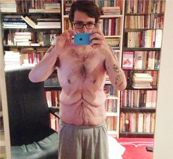 Da xấu, nhăn nheo và hậu quả của việc giảm cân quá nhanh. (Ảnh: Internet)