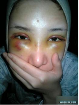 Đây là mí mắt cô sau khi vừa được cắt. Trông thực sự rất đau đớn! (Ảnh: Internet)