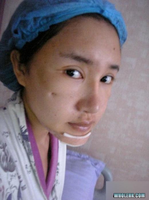 Tuy nhiên, một thời gian sau đó, khuôn mặt cô đã được cải thiện khá đáng kể. (Ảnh: Internet)