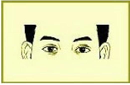 Người vớihốc mắt lõm xuống cótính cách khá nhạy cảm, chịu khó làm việc, tâm tình kín đáo, bề ngoài trông vào luôn có vẻ buồn, rất giỏi đoán ý qua lời nói và sắc mặt, thường cảm thấy lòng không yên, việc gì cũng nhẫn nhục chịu đựng.(Ảnh Internet)