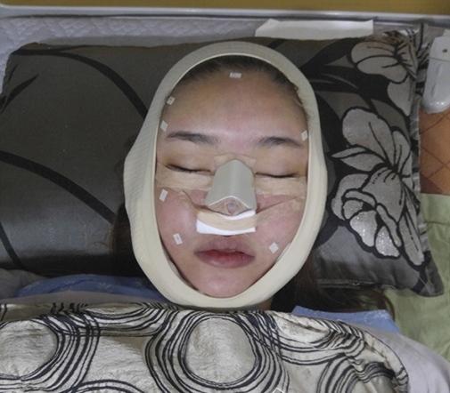Sau gương mặt sưng húp, Kỳ Hân bị tung loạt ảnh trên giường phẫu thuật thẩm mỹ - Tin sao Viet - Tin tuc sao Viet - Scandal sao Viet - Tin tuc cua Sao - Tin cua Sao