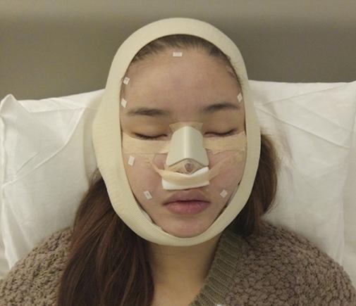 Khuôn mặt băng bó và khá sưng của Kỳ Hân sau ca phẫu thuật - Tin sao Viet - Tin tuc sao Viet - Scandal sao Viet - Tin tuc cua Sao - Tin cua Sao