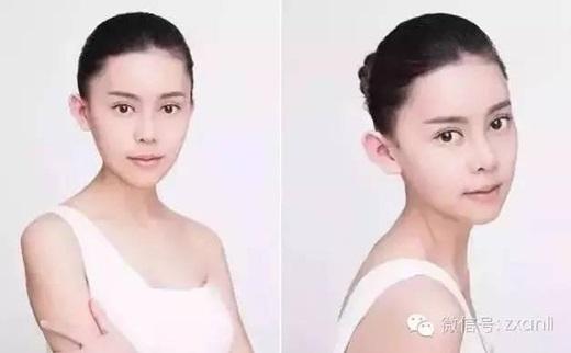 Để cóđược gương mặt xinh đẹpnhư hiện tại cô phải trải qua hơn 10 cuộcphẫu thuật vô cùng đau đớn và phải trả số tiền gần3,5 tỉ đồng. (Nguồn Internet)