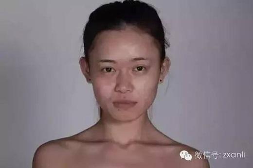 Trước khi phẫu thuậtcô gái có gương mặt không mấy nổi bật, đôi mắt vôhồn, khóe miệng rủ xuống, xương hàm cũng không thon gọn. (Nguồn Internet)