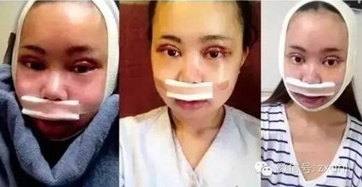 Phẫu thuật ngày đầu tiên, gươngmặt cô gái sưng vù. (Nguồn Internet)
