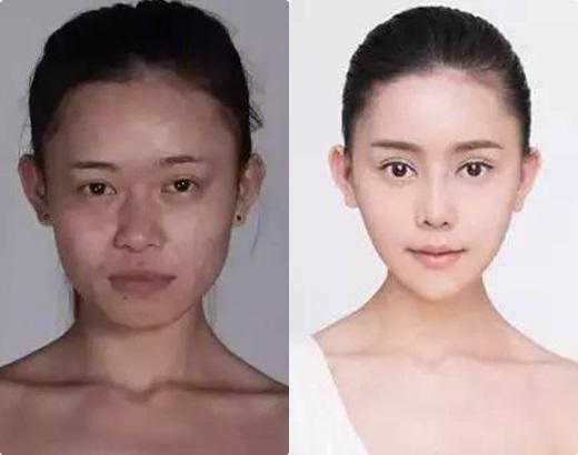 Cô gái trước và sau phẫu thuật thẩm mĩ(Nguồn Internet)