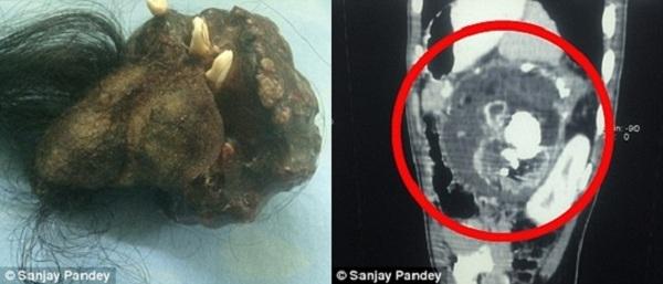 Hiện tượng thai kí sinh cực kì hiếm gặp trên thế giới (Ảnh: Internet)