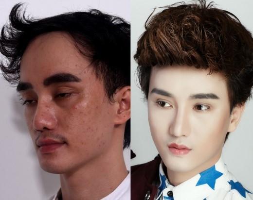 Cú lột xác ngoạn mục của hot boy nghiện dao kéo nhất Việt Nam