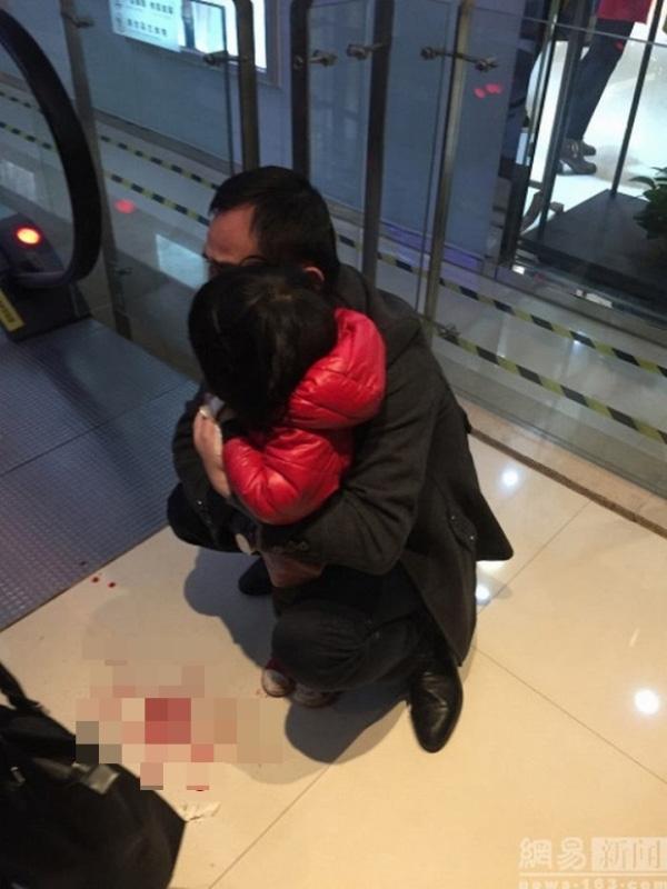 Bé gái 2 tuổi đã gặp phải vụ tai nạn kinh hoàng do sự bất cẩn của cha mẹ.