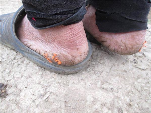 Khó ai có thể cầm được nước mắt khi chứng kiến hình ảnh này. Đôi chân của một người bà, người mẹ già lam lũ.(Ảnh: Internet)