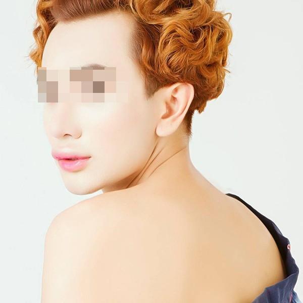 """C.D trở thành một người có ngoại hình """"nữ tính"""", khuôn mặt khá cứng mà nguyên nhân là do phẫu thuật """"thất bại"""": Ảnh: Internet"""
