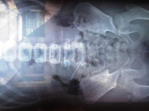 Cây kim đâm thủng bụng bé gái trước đó ở Quảng Bình. (Ảnh:Bệnh viện Hữu nghị Việt Nam - Cu Ba Đồng Hới)