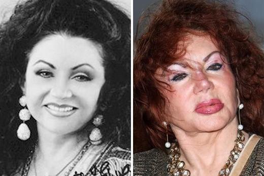 Jackie Stallone cũng từng là một diễn viên nổi tiếng và xinh đẹp. Bà cũng là bạn thân của những người nổi tiếng khác như công nương Diana, Michael Jackson, Mikhail Gorbachev, Lord, Lady Mountbatten và cả Nelson Mandela...Tuy nhiên, sau những lần chỉnh sửa nhan sắc, khuôn mặt của bà đã trở nên biến dạng, lồi lõm khiến nhiều người kinh sợ. Khi ở tuổi 91, bà đã trải lòng về điều này, vàcho biết đã rất hối hận khi chỉnh sửanhan sắc. (Ảnh: Internet)