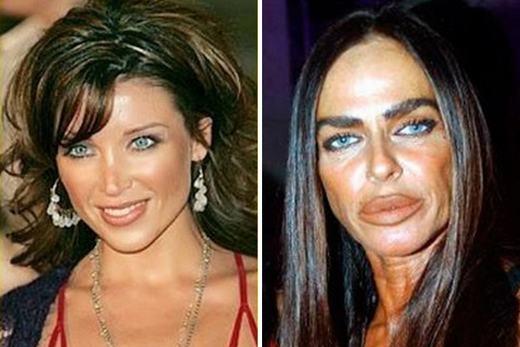 Michaela Romanini nghiện tiêm collagen và botox để căng da cũng như làm cho đôi môi của mình gợi cảm hơn. Tuy nhiên, việc lạm dụng chúng đã khiến cô phải trả giá bằng chính nhan sắc của mình. (Ảnh: Internet)