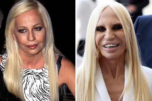 """Donatella Versace cũng từng là một phụ nữ xinh đẹp. Thế nhưng, kể từ sau khi """"lỡ"""" phẫu thuật thẩm mĩ, cô đã """"nghiện"""" nó. """"Mỗi năm, tôi sử dụng cả tấn kem dưỡng da, chỉ để chăm sóc cho mặt của mình"""", Donatella tiết lộ. (Ảnh: Internet)"""