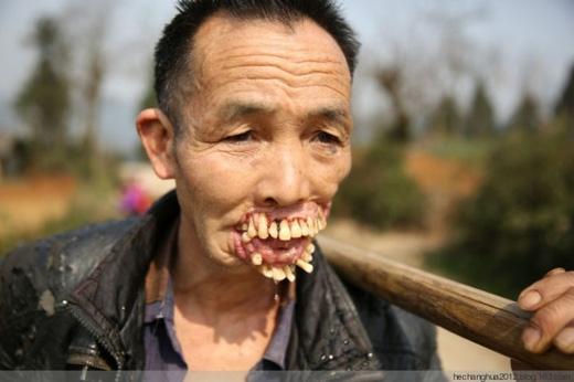 Dân làng cho biết,Wu không cắn thức ăn được, từ bao lâu nay chỉ ăn cháo và những món mềm.(Ảnh: letu)