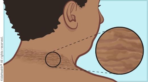 Theo các chuyên gia, vòng tròn sẫm màu trên cổ chính là biểu hiện của tiểu đường loại 2. (Ảnh: littlethings)