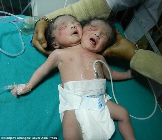 Ca sinh 2 đầu trước đó tại Bangladesh. (Ảnh: Sanjeev Ghangas)