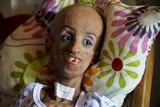 Dù phải mãi mãi ngồi xe lăn cũng như tiếp nhận điều trị hết sức khắc nghiệt, Magali vẫn rất lạc quan và mong ngóng sinh nhật thứ 15. (Ảnh: Internet)