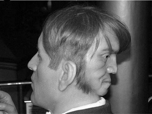 Edward Mordakecó một khuôn mặt thứ hai nằm ngay sau đầu. (Ảnh: Internet)