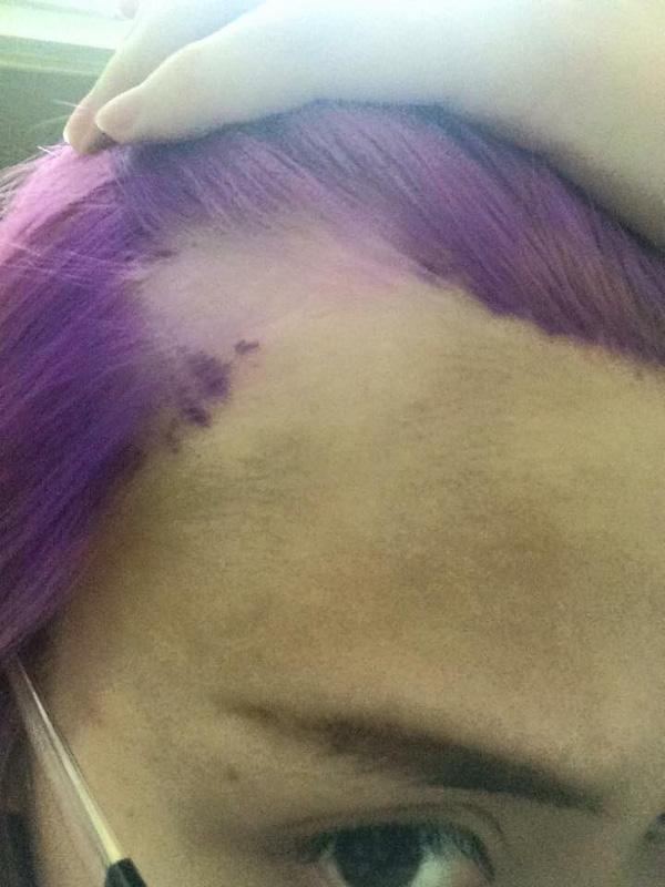 Mảng tóc của cô nàng này bị hư hỏng nặng. Ảnh: Internet