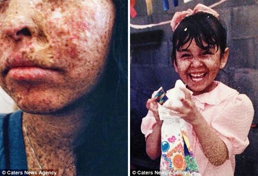 Cô đã trải qua 25 cuộc cuộc phẫu thuật lớn nhỏ khác nhau để loại bỏ tế bào ung thư. (Ảnh: Daily Mail)
